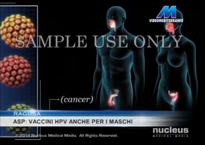 vaccino_HPV_Ragusa