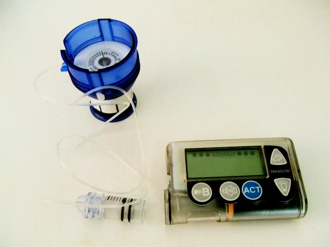 Insulin_pump_and_infusion_set