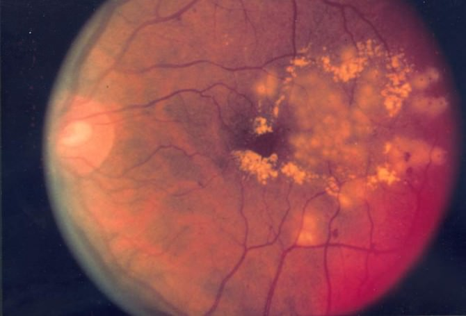 Fundus_photo_showing_focal_laser_surgery_for_diabetic_retinopathy_EDA10
