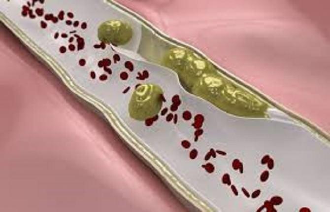 embolia arteriosa