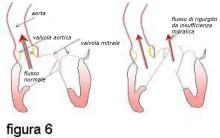 f06-schema+insufficienza+finale-N