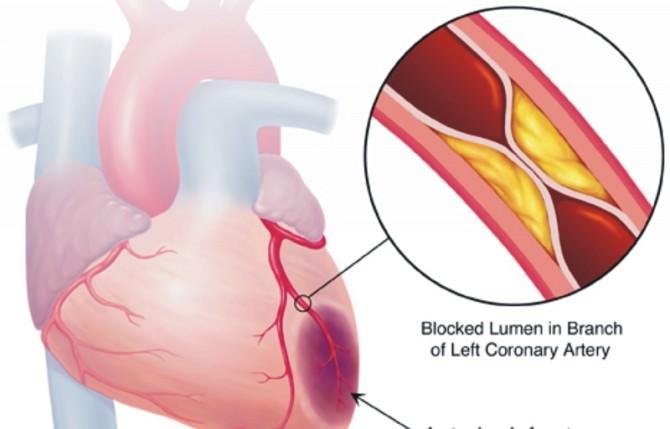 Angioplastica-coronarica-5