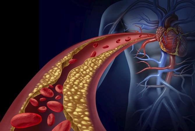 ipercolestrolemia-familiare