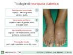 neuropatia-diabetica_640x480